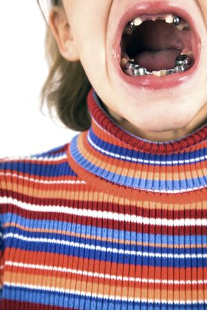 girl tongue: Girl with teeth problem - close up.