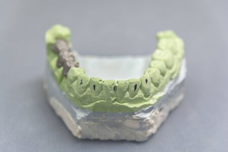 Green dental tooth implant plaster pattern with metal bridge on gray table