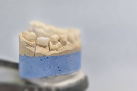One ceramic dental tooth implant plaster pattern on gray table