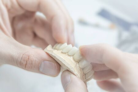 Medical tooth dental technician holding prosthetic in laboratory