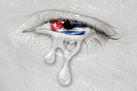 Crying eye with Cuba Flag iris on black and white face. concept of sadness for Cuba, patriotic metaphor. Stock Photo