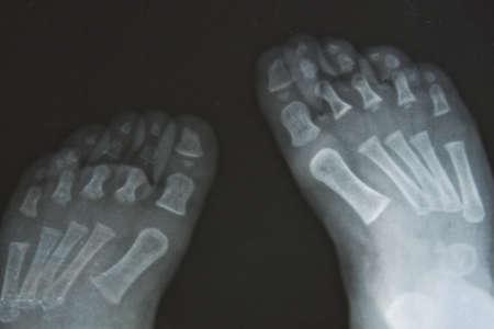 X Feet photo