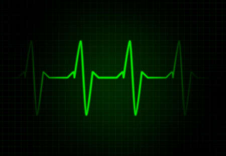 heart ekg trace: Cardiac Frequency in Green Colour