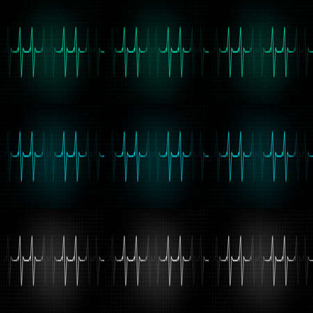 heart ecg trace: Cardiac Frequency in light tone Color Collection
