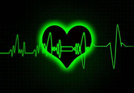 electrocardiograph: Cardiac heart beat monitor. Stock Photo