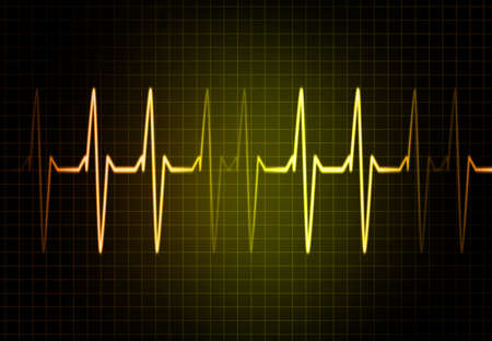 frequency: Cardiac Frequency in yellow Color Stock Photo