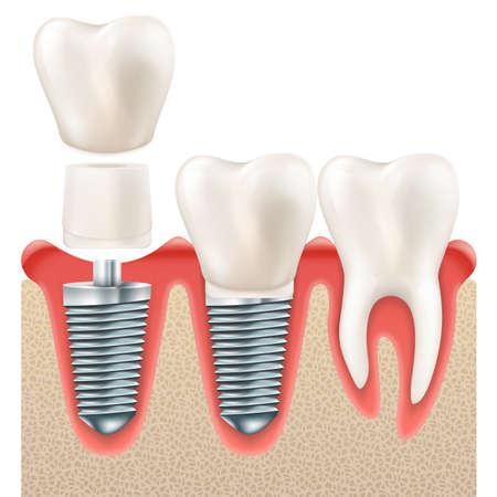 Set di denti. Denti realistici umani e impianto dentale. E include anche il vettore EPS 10