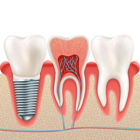Set di denti. Denti realistici umani e impianto dentale. E include anche il vettore EPS 10 Vettoriali