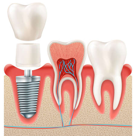 Zahnsatz. Menschliche realistische Zähne und Zahnimplantat. Und schließt auch Vektor ENV 10 ein Standard-Bild - 81231988
