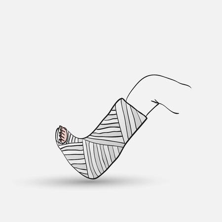 fractura: fractura de hueso Vectores