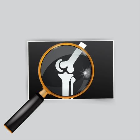 X-ray of the knee magnifying glass search