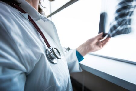 Female  doctor checking xray image of lungs. Stock Photo