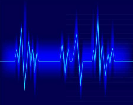 oscillate: Electrocardiogram Illustration