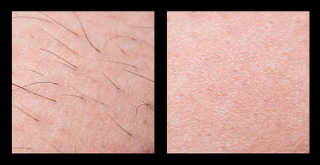 Depilation and sugaring. Hair removal. follicle. Woman leg with sugar or wax. Before and after. Process and steps of depilation. Stockfoto - 109751055