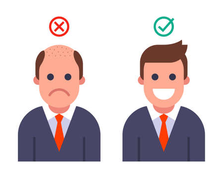 bald man transplanted hair. result before and after hair transplant. flat vector illustration.