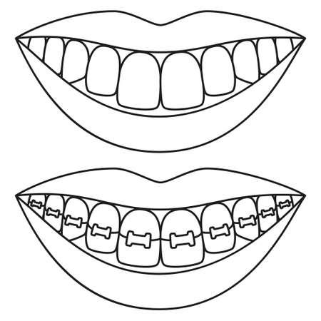 Line Art Schwarz-Weiß-Zähne-Ausrichtungskonzept. Vor und nach dem zahnigen Lächeln mit Zahnspange. Malbuchseite für Erwachsene und Kinder. Zahnpflege-Vektorillustration für Symbol, Etikett, Abzeichendekoration Vektorgrafik