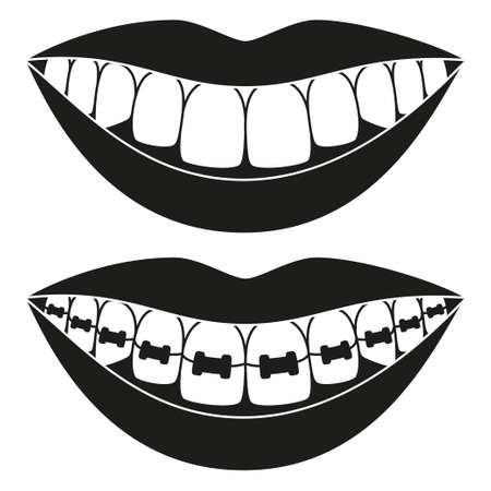 Black and white teeth aligning elements silhouette. Before and after toothy smile with braces. Achieving beautiful smile concept. Dentalcare vector illustration for icon, label, badge decoration Stock Illustratie