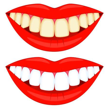 Sourires blancs et jaunes de dessin animé coloré. Concept de blanchiment des dents. Illustration vectorielle de soins dentaires pour icône, autocollant, logo, timbre, étiquette, badge, certificat, dépliant ou décoration de bannière