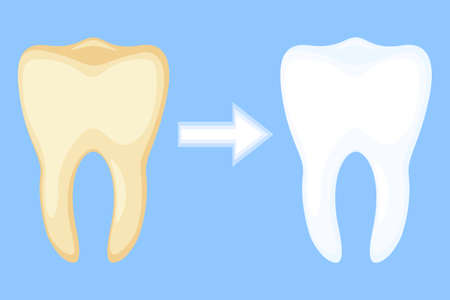 Teeth whitening concept before and after. Dirty yellow tooth becomes white. Dental care vector illustration for icon, sticker, logo, stamp, label, badge, certificate, leaflet or banner decoration Illustration
