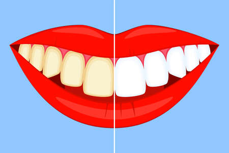 Teeth whitening concept on smile.. Dirty yellow tooth becomes white. Dental care vector illustration for icon, sticker, logo, stamp, label, badge, certificate, leaflet or banner decoration Vettoriali
