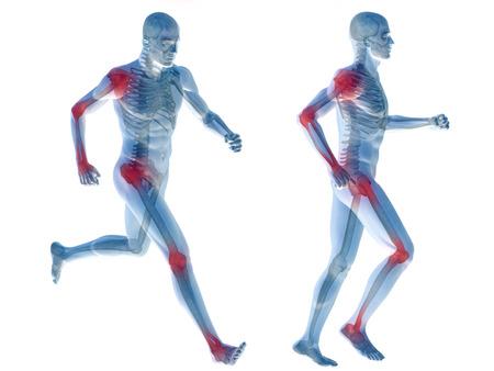 de rodillas: Aislado conceptual cuerpo dolor en las articulaciones hombre anatomía humana en 3D