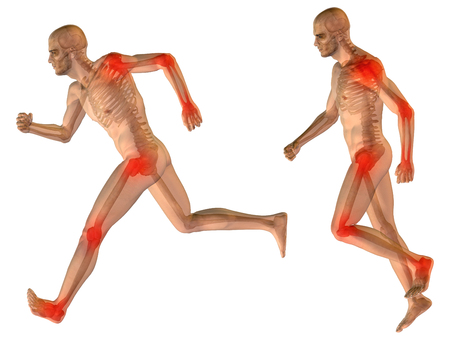 Conceptual 3D human man anatomy joint pain body isolated photo