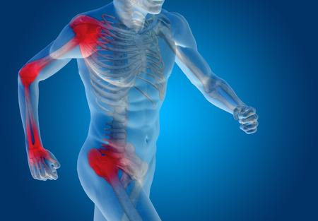 bone: Conceptual human body anatomy articular pain on blue background