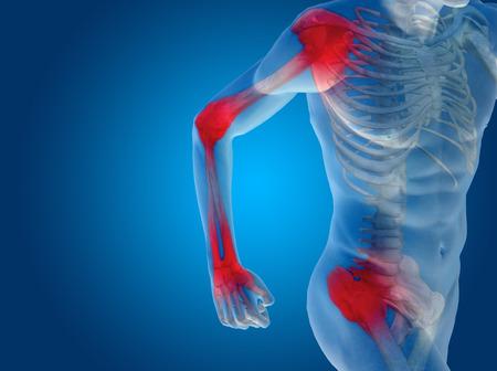 codo: Conceptual anatomía del cuerpo humano del dolor articular en el fondo azul