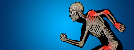elbows: Conceptual human body anatomy articular pain on blue background