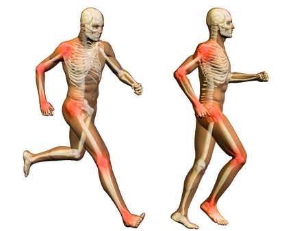 Conceptual 3D human man anatomy joint pain body isolated Stock Photo