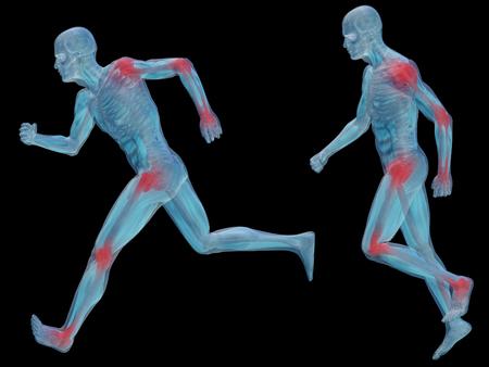 Conceptual 3D mann menschlich Anatomie Gelenkschmerzen Körper isoliert Standard-Bild - 35451559