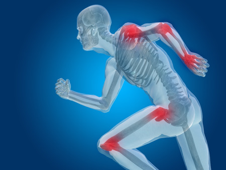 cramp: Conceptual human body anatomy articular pain on blue background