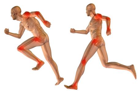 개념적 3D 인간의 남자 해부학 관절 통증의 몸은 고립