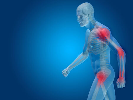 Conceptual human body anatomy articular pain on blue background Banco de Imagens - 35765257