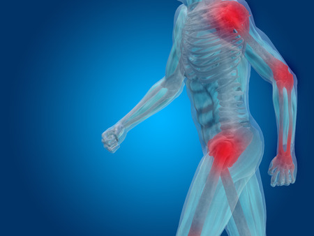 Conceptual human body anatomy articular pain on blue background