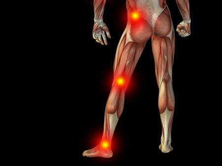 Conceptuele menselijk lichaam anatomie articulaire pijn op geïsoleerde op zwarte achtergrond