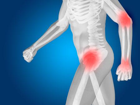 elbows: Conceptual human body anatomy articular pain on blue backgroun