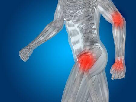 Conceptual human body anatomy articular pain on blue backgroun