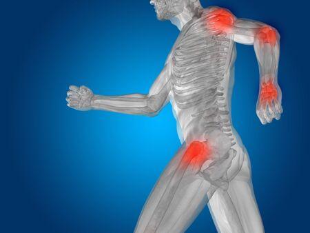 rheumatism: Conceptual human body anatomy articular pain on blue backgroun