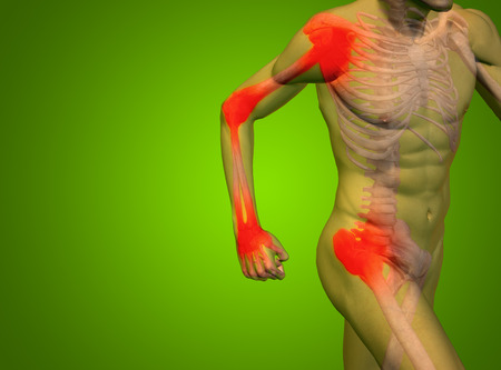 cramp: Conceptual human body anatomy articular pain on green background