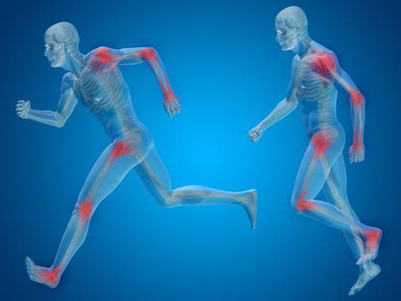rheumatism: Concept or conceptual man anatomy with pain or ache on blue background
