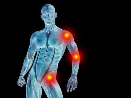 anatomia: Conceptual anatomía del cuerpo humano articular dolor en aisladas sobre fondo negro
