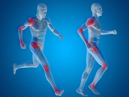 osteoporosis: Concept or conceptual man anatomy with pain or ache on blue background