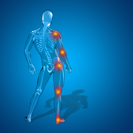 neck injury: Concept or conceptual 3D human man or male skeleton pain or ache anatomy transparent body, blue background