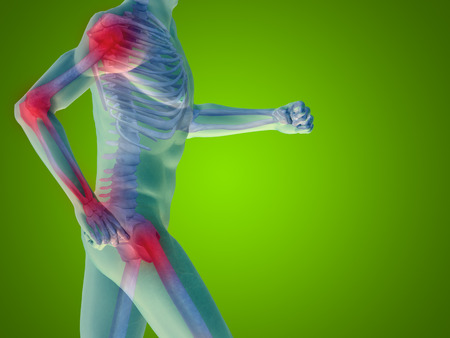 joint: Conceptual human body anatomy articular pain on green background