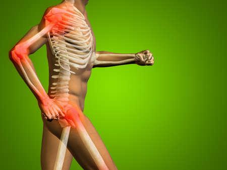 rheumatism: Conceptual human body anatomy articular pain on green background