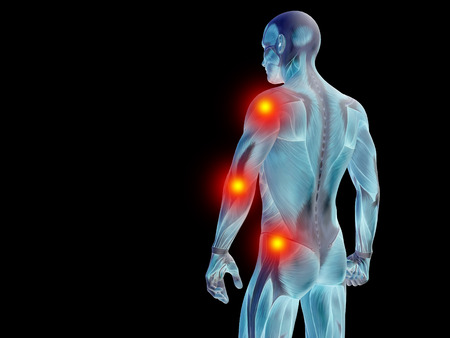 osteoporosis: Conceptual human body anatomy articular pain on isolated on black background