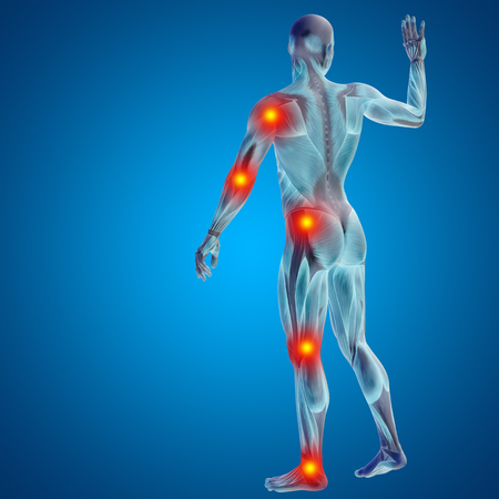 rheumatism: Conceptual 3D human man anatomy joint pain body on blue background Stock Photo