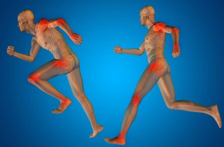 spine x ray: Concept or conceptual man anatomy with pain or ache on blue background