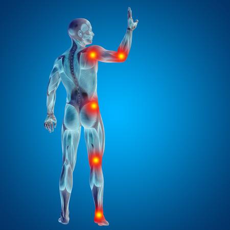 Conceptual 3D mann menschlich Anatomie Gelenkschmerzen Körper auf blauem Hintergrund Standard-Bild - 53714904